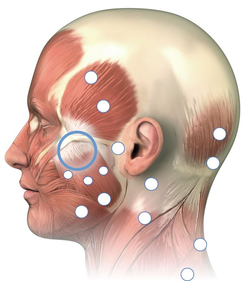 Jaw pain trigger points that needs trigger point pain management with injections
